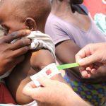 A un niño le miden el contorno del brazo en el Sur de África Foto WORLD VISION/ Europa Press