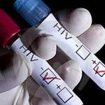 Pruebas de VIH SIDA